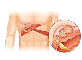 肝臟不會喊痛! 肝癌晚期才有症狀