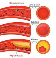 研究:鳳梨蛋白酶是治心血管疾病的潛力療法