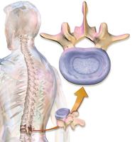 利用幹細胞生成椎間盤 可植入人體作為替代物