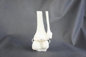 幹細胞「種子」注入支架 助受損骨骼復原