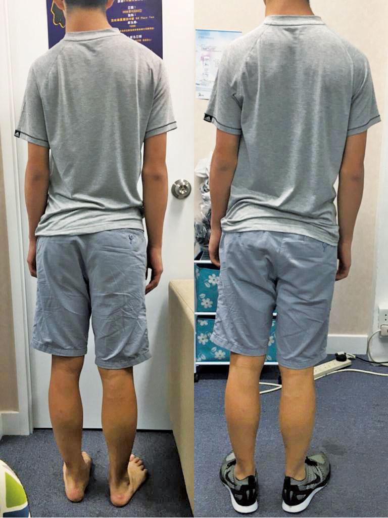 扁平足患者穿上矯正鞋後背部挺直了。(任慶福提供)