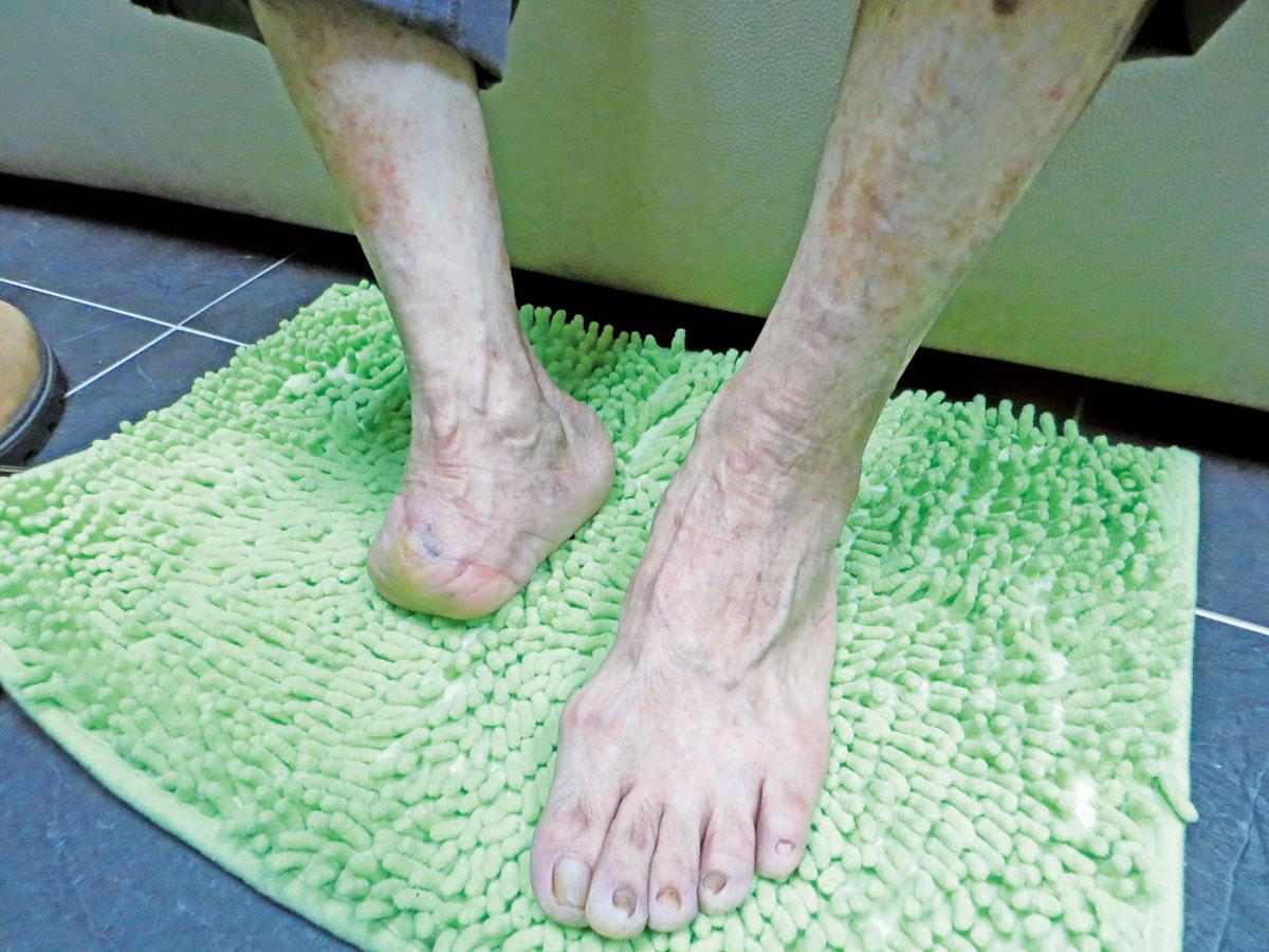 四十年前失去右腳腳掌的蔡先生,由於長期無法正常行走,導致右腿肌肉收縮嚴重。