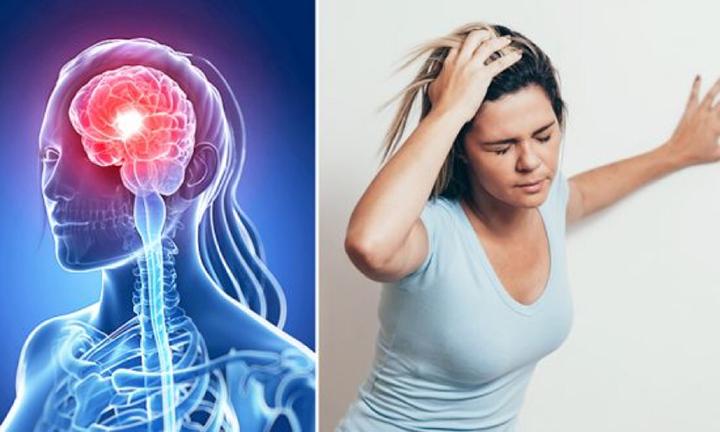 腦中風來勢兇猛,嚴重時會導致癱瘓、臉歪、語言障礙,甚至同心臟病一樣危及生命。很多人因不了解中風的種種先兆而未能及早察覺。然而,臨床經驗顯示,很多中風的跡象早在中風發生前一個月就已經出現。(Illustration - Shutterstock)