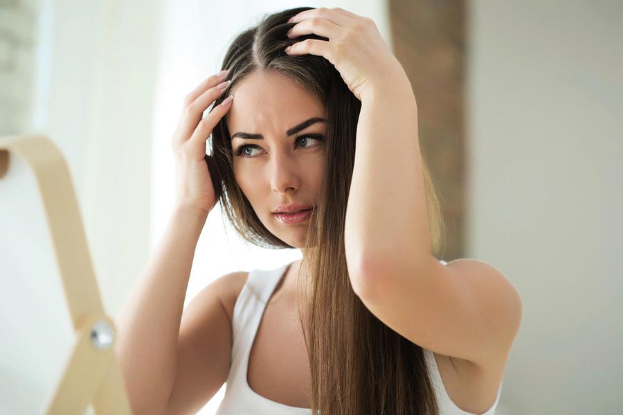 頭癬的治療