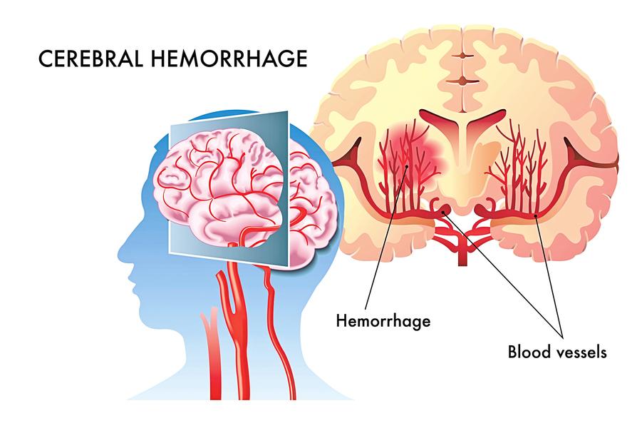 腦溢血 這些症狀立刻警覺