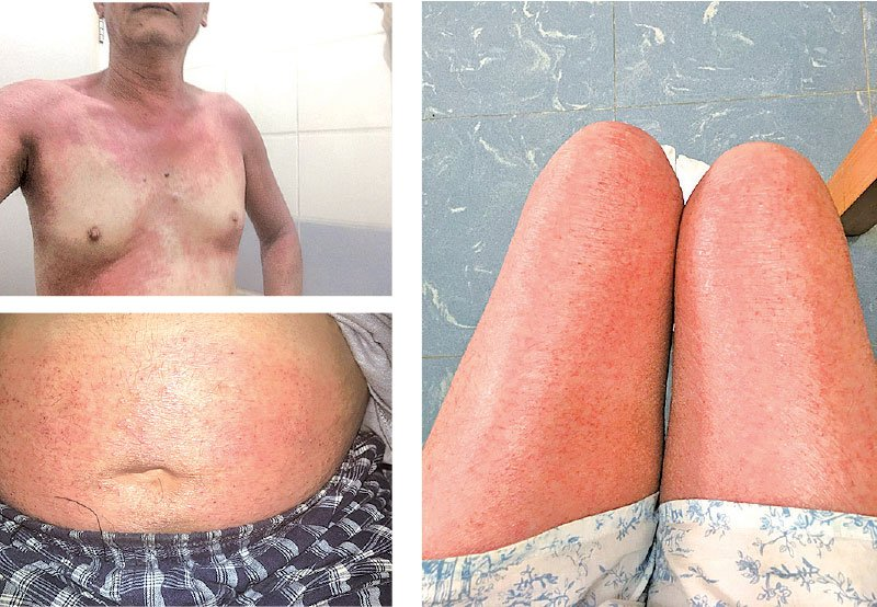 馮先生停止服用類固醇治療濕疹後,出現戒類固醇的典型併發症——「紅皮症」,原沒有濕疹的部位如胸口、腹部和大腿皮膚赤紅、發滾和痛楚,並有發燒。(受訪者提供)