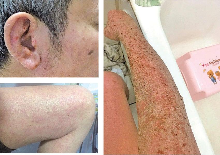 連原本沒有濕疹的雙臂、雙腿甚至頭部等都廣泛爆發濕疹。(受訪者提供)