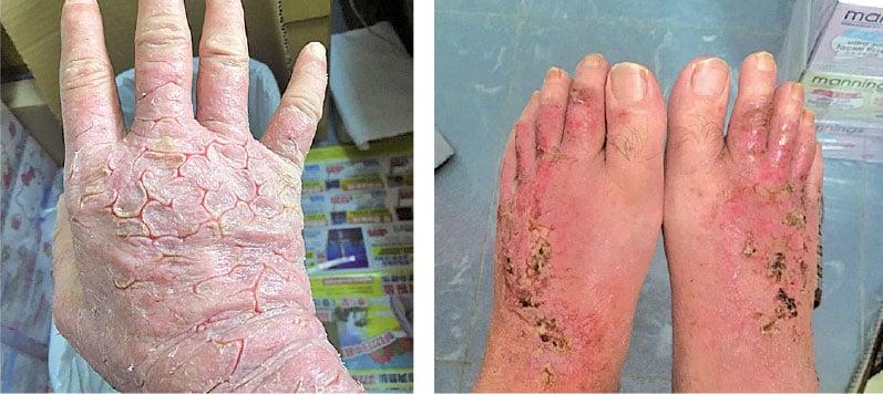 類固醇反應和濕疹交替來襲,馮先生原本患濕疹的手背、腳背部位嚴重潰爛滲液。(受訪者提供)