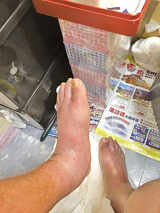 戒類固醇後,嚴重腳腫令馮先生一度不能正常行走,要靠輪椅代步。(受訪者提供)