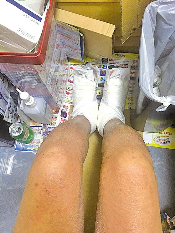馮先生雙腳佈滿水泡,一使力和走路就流水,嚴重到要用成人紙尿布包裹。(受訪者提供)