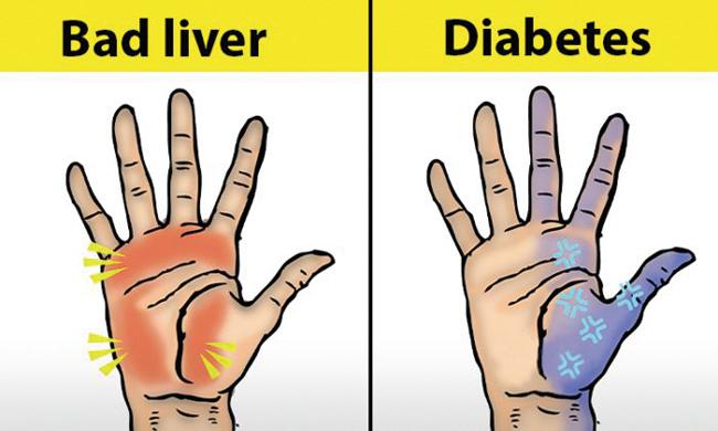 雙手不僅能有效幫助我們的日常生活,亦是我們身體的預警中心,所以日常應該多關注手掌發出的健康信號。(資料圖片)