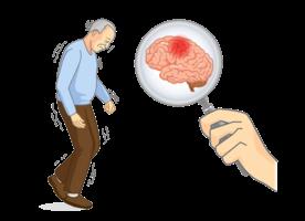 腦中風症狀千變萬化 提高警覺快送醫