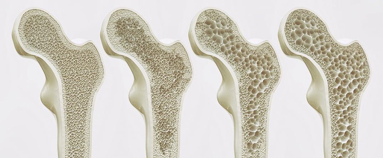 全世界有2億多女性受骨質疏鬆症的困擾,特別是過了更年期的婦女。圖為不同密度的骨骼示意圖。(Shutter Stock)