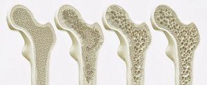 新研究或可逆轉女性骨質疏鬆