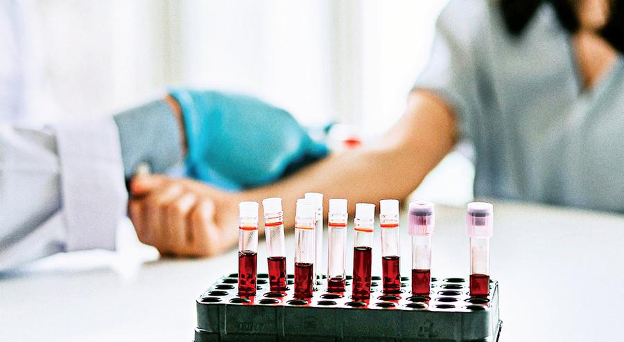 研究:糖化血色素濃度  可反應身體衰老速度