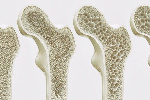 研究人員通過改變老鼠大腦中的神經元,讓雌老鼠長出了強壯,密度大的骨頭。這一發現為找到治療女性骨質疏鬆症的方法邁出了第一步。(SHUTTERSTOCK)