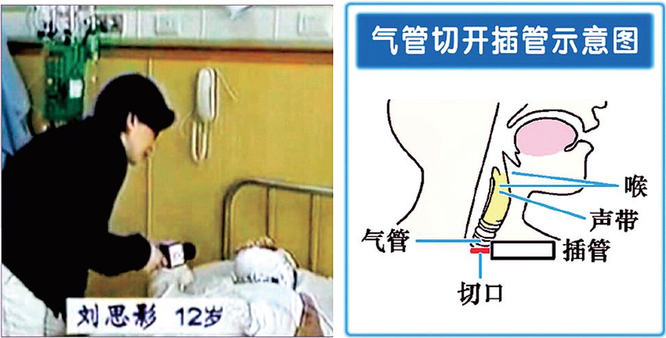 CCTV採訪「自焚」者氣管切開能唱歌。 記者不穿隔離衣,把易攜帶病菌的話筒伸向受訪者。