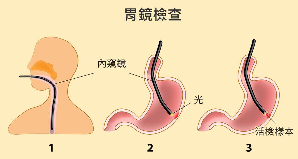 胃鏡檢查可診斷是否為胃炎、胃潰瘍、胃息肉、胃癌、腸化生等病症。(大紀元製圖)