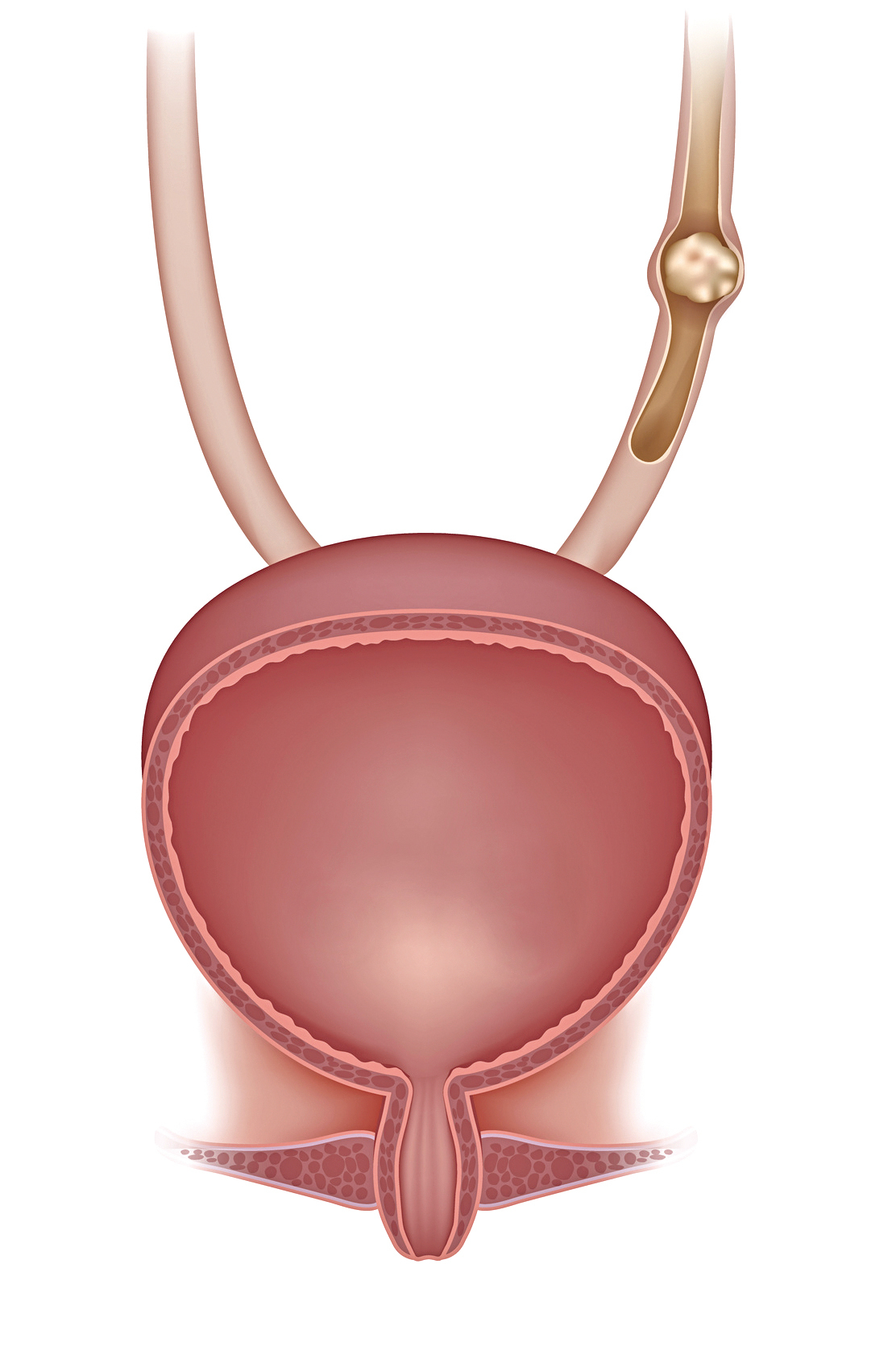 女性 腰痛 左側