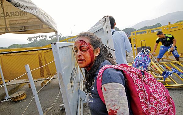 上周六,在哥倫比亞與委內瑞拉邊境Simon Bolivar橋,委國人與國民警衛軍發生衝突。圖為一位受傷婦女。(SCHNEYDER MENDOZA/AFP/Getty Images)