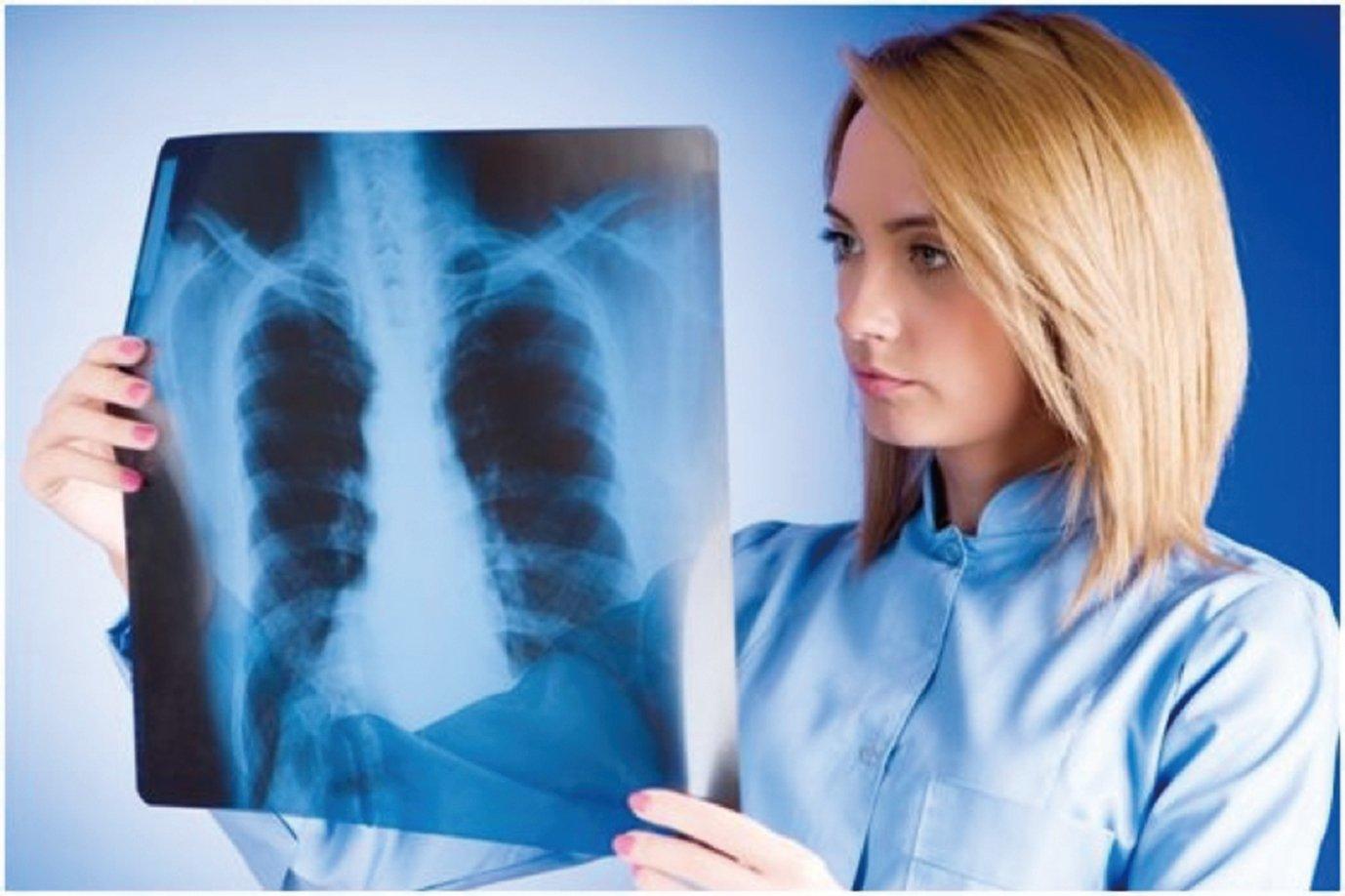 霧曦致癌,大陸霧霾近年年癒合嚴重,影響範圍南下,嚴重影響本港,那麼對肺癌的預防,發現和治療也成為市民日益關注的問題。(的Fotolia)