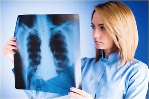 肺癌難發現 6個徵兆不可忽視