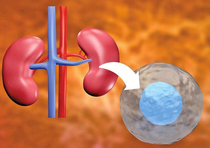 幹細胞療法有望替代腎移植術
