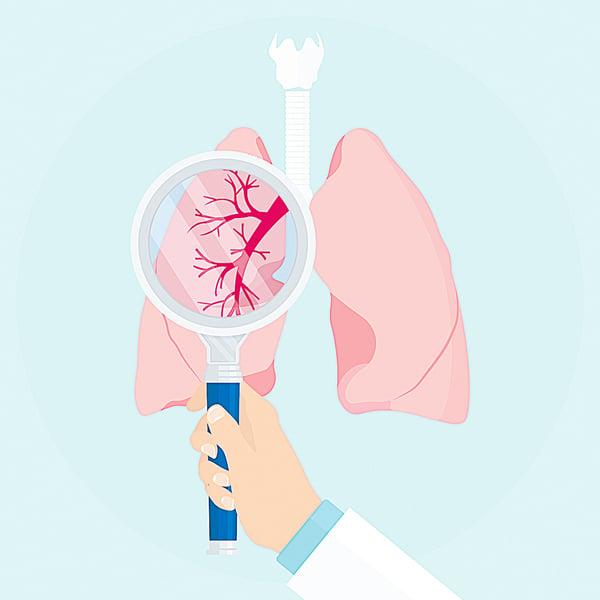 肺癌篩檢追蹤五建議