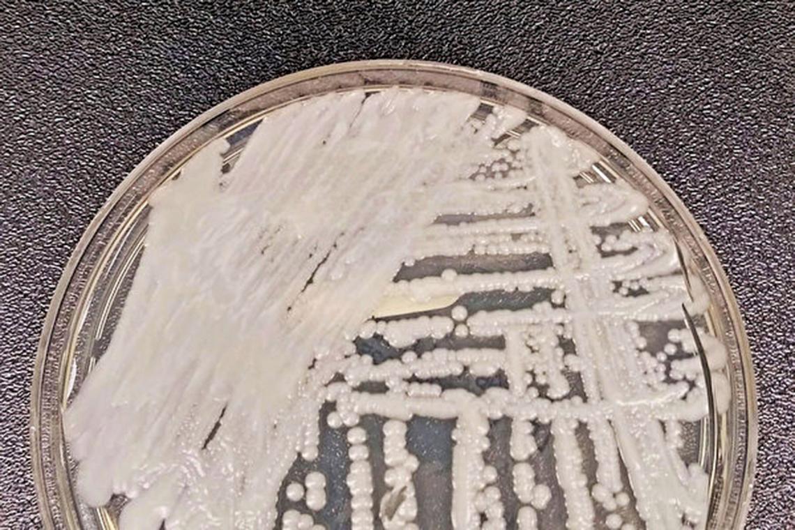 耳念珠菌。(網絡圖片)