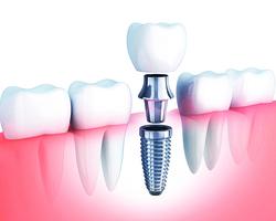 植牙後做好口腔保養牙齒用得久