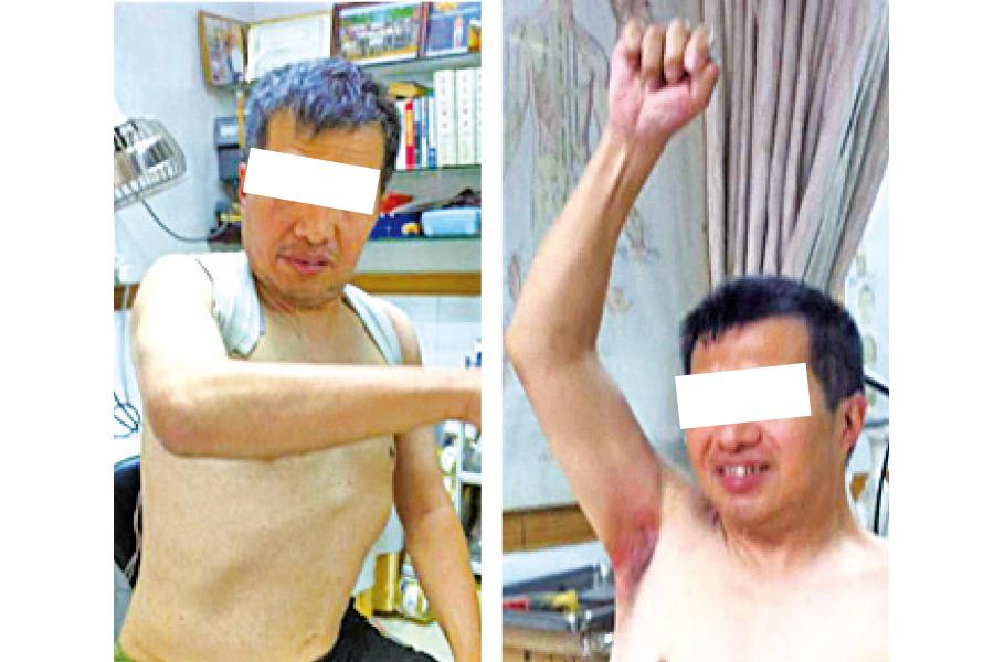 ● (上排)陳先生中風後右半邊身癱瘓,經陳醫師針藥並用,由右手緊貼腰部不能高舉,到右手可以高高舉起。