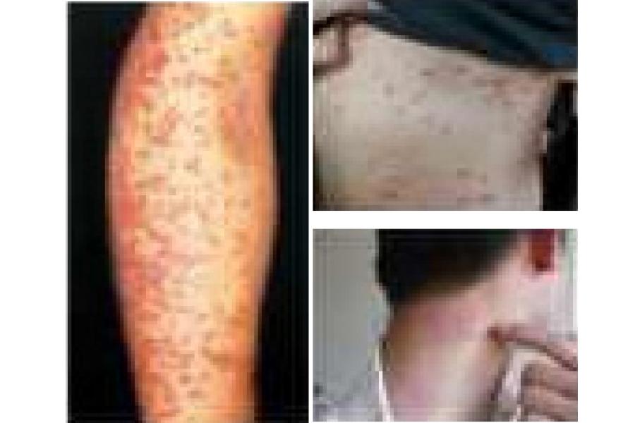 ● 40歲劉先生全身皮膚出粒粒紅疹疙瘩成片,搔癢無度,抓破後滲津水津血,久治多年乏效;經陳醫師精湛醫術和嚴肅囑咐忌口,一星期得到捷效。