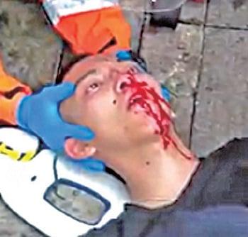 有年輕人疑遭催淚彈擊中吐血。(網絡影片截圖)