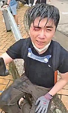 青年疑遭警開槍打中右眼,表示無法視物。(網絡影片截圖)
