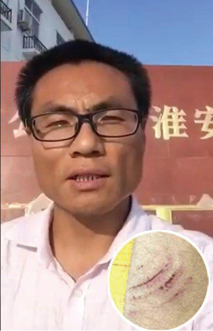 上海維權律師彭永和(大圖)去江蘇會見委託人,遭不明身份人員毆打,身上及手臂多處受傷(小圖)。(影片截圖/受訪者提供)