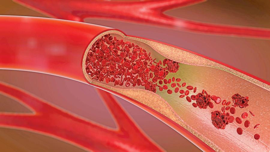 研究者找到治療動脈硬化潛在方法