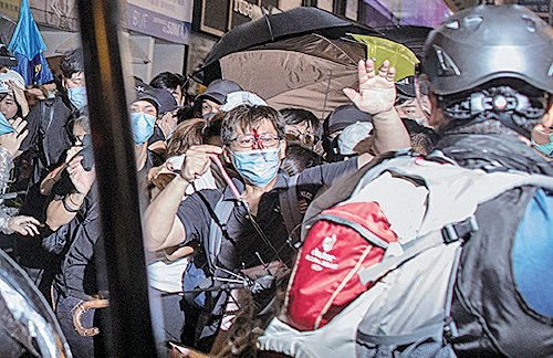 警方驅散期間,有市民血流披面。(Getty Images)