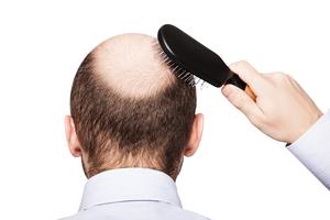 研究者發明用幹細胞治療脫髮