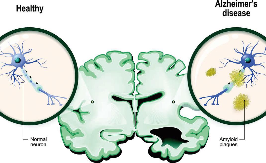 阿茲海默症示意圖,左邊為正常大腦的神經元,右邊為患病的大腦神經元。(ShutterStock)