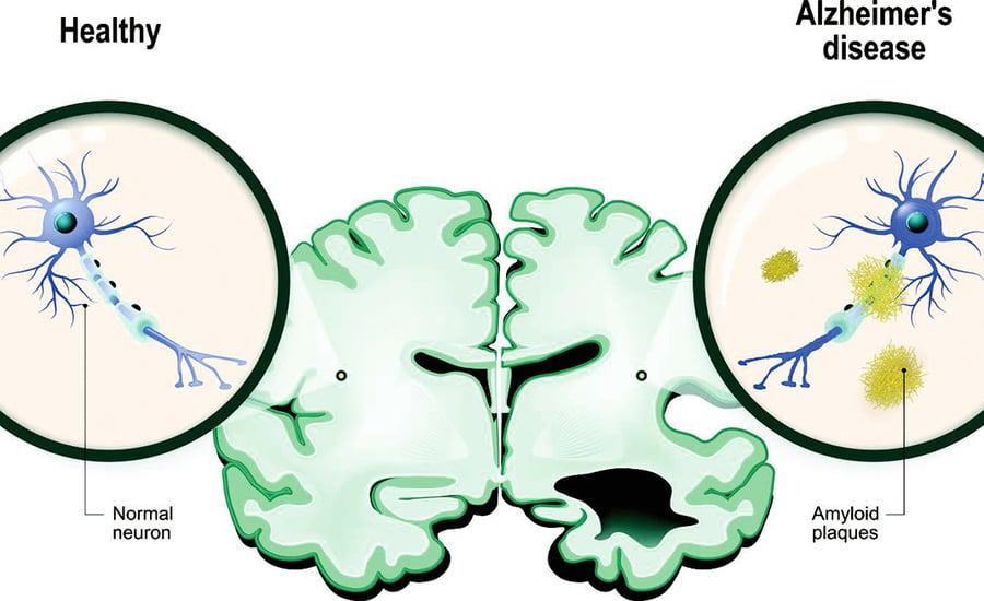 新方法可準確診斷阿茲海默症