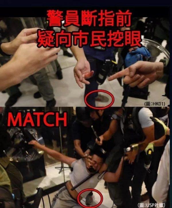 香港沙田警民衝突中,有警員摳挖示威者眼睛後,手指被咬斷。(網絡圖片)