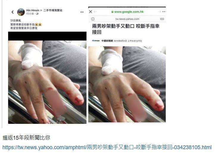 中共官媒斷指圖的原始出處是中廣新聞網2015年8月4日的報道《兩男吵架動手又動口咬斷手指幸接回》。(網絡截圖)
