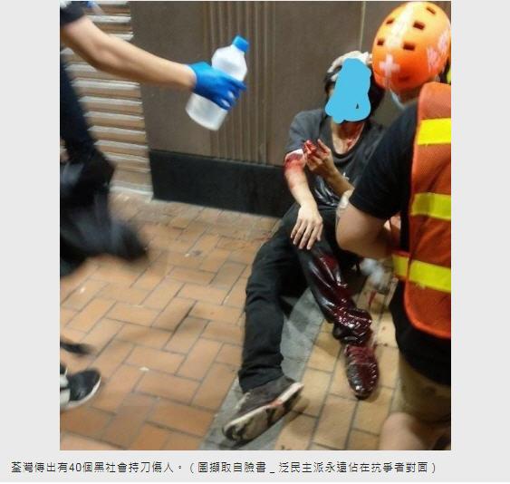 眾安街有黑衣示威者被砍傷,手腳流血,刀傷見骨。(臉書圖片)