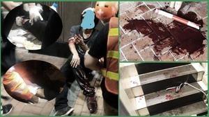 香港黑幫持刀砍傷示威者 血流滿地傷見骨