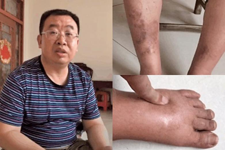 8月5日,江天勇律師去鄭州看病,同時給已逾80歲高齡的岳母慶生,但遭到信陽羅山縣國保的貼身嚴密監控阻攔。(網絡圖片)