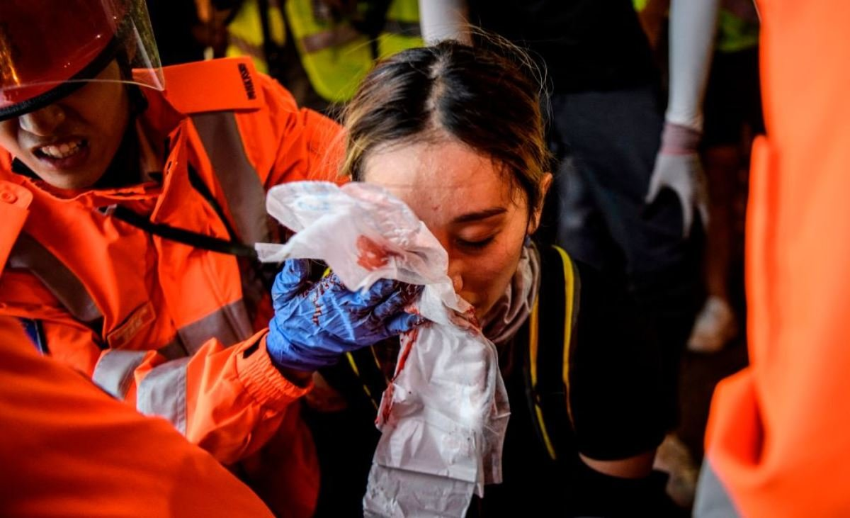 香港2019年8月11日再次爆發嚴重警民衝突,有女示威者在衝突中疑似被警方發射的布袋彈集中右眼,血流不止,恐將失明。 (ANTHONY WALLACE/AFP/Getty Images)