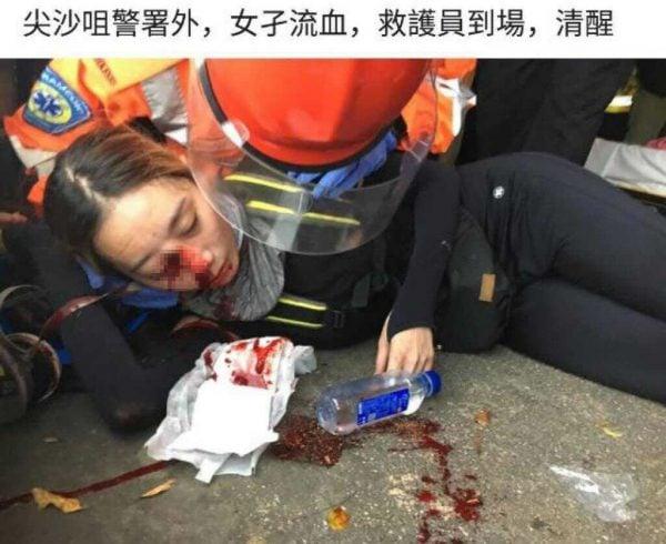 香港8月11日再次爆發嚴重警民衝突,有女示威者在衝突中疑似被警方發射的布袋彈集中右眼,血流不止,恐將失明。(ANTHONY WALLACE/AFP/Getty Images)