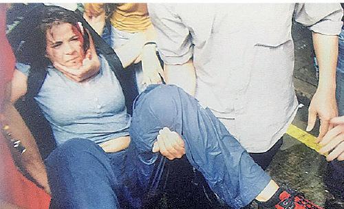當年在澳門被水炮車射飛受傷的外籍記者 (澳門軍事評論員黃東提供)