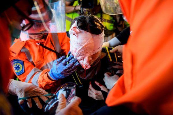 香港尖沙咀地區8月11日晚間再爆嚴重警民衝突,一名黑衣少女疑被布袋彈擊中右眼受重傷,世人震驚。(ANTHONY WALLACE/AFP/Getty Images)