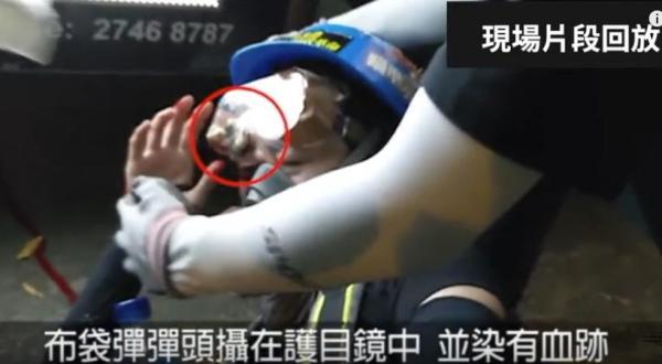 香港尖沙咀眼部中彈女子被救護人員扶起頭部的瞬間,可以看到在女子所戴的護目鏡上的裂縫處明顯夾著一枚帶血的狀似布袋彈的物件。(影片截圖)